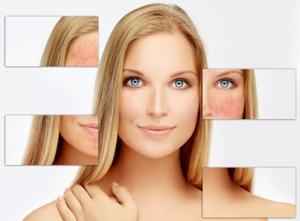 karakteristik-kulit-sensitif